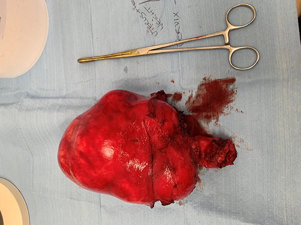 Large Fibroid Uterus